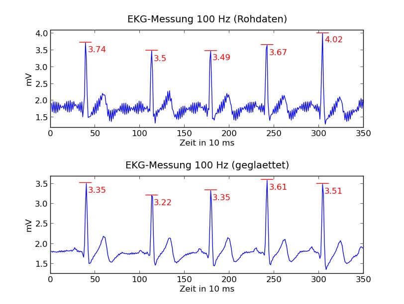 EKG-Messung mit Aufnahmefrequenz von 100 Hz