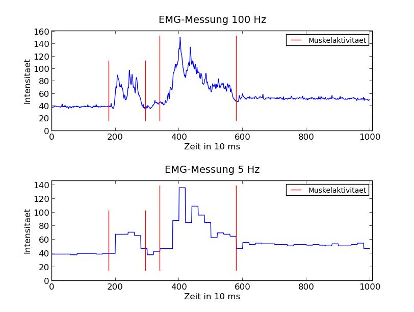 EMG-Messung mit Aufnahmefrequenz von 100 Hz und 5 Hz